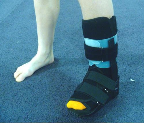 gymnast foot cast