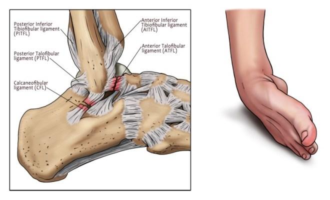 ankle-sprain-1